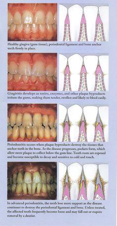 periodontal disease - Google Search
