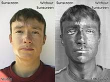 This photo shows how sunscreen cannot be seen unless put under an infrared light. When under the light, we can see that skin is darker showing that something is covering.