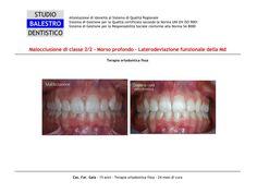 Casi clinici ortodontici Linea mediana deviata http://www.studiodentisticobalestro.com/2014/06/malocclusione-di-classe-22_16.html