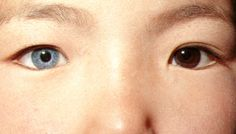 Heterochromia is a condition of the eye, characterized by different colors. Sometimes the left differs from the right as in this case of total heterochromia