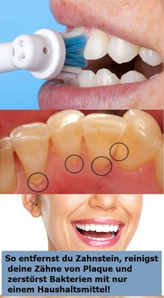 How To Remove Tartar, Cleanse Your Teeth From Plaque And Destroy Bacteria With Only One Household Remedy! Dental Hygiene, Dental Care, What Causes Tooth Decay, Remedies For Tooth Ache, Receding Gums, Oral Health, Health Care, Health Advice, Remove Stains