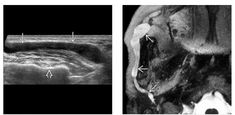 (Lef) Longitudinal grayscale US shows diffuse, smooth dilatation of a parotid duct as it passes over the masseter muscle toward its intraoral opening after piercing the buccinator muscle. Note the mandibular cortex   (Right) Corresponding MR sialogram demonstrates the entire length of dilated intraparotid duct with no obvious focal intraductal calculus. This patient had a history of recent passage of parotid calculus. Calculus, Ultrasound, Piercing, Muscle, Smooth, Note, History, Historia, Piercings