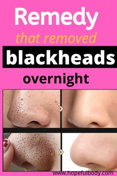 Feb 2020 - Home Remedies of how to get rid of blackheads overnight homemade naturally for Pimples, Blackheads, and whiteheads. for acne overnight - homemade acne mask - how to get rid of pimples and blackheads overnight skincare Blackhead Remedies, Pimples Remedies, Diy Blackhead Remover, Face Treatment, What Are Blackheads, How To Clear Blackheads, Homemade Acne Mask, Clear Skin Overnight