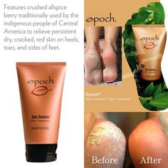 Epoch Sole Solution Foot Treatment is a rejuvenating foot cream for those suffering from rough, dry or cracked feet. Skin Treatments, Epoch Sole Solution, Ap 24 Whitening Toothpaste, Heel Balm, Ultra Beauty, Skin Polish, Daily Makeup Routine, Red Skin, Wellness