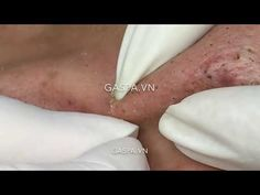 Is anyone waiting for this lastest full Blackhead-popping video? Acne Treatment, Waiting, Spa, Youtube, Medical, How To Remove Blackheads, Mesh, Medicine