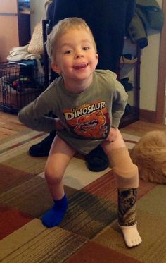 I love my new prosthesis. Thank you Shriners Hospital. Syme's amputation due to tibial dysplasia. My NF Hero Sawyer