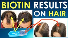Biotin Hair Growth Results Before and After / Hair growth treatment for ...