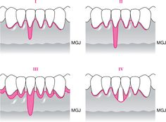 miller's classification of gingival recession - Google Search