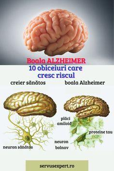 #dementa #dementasimptome #dementasenila #pierderedememorie #pierderidememorie #dementaalzheimer #boalaalzheimer #memoria #memorie #manifestaridedementa #ceestedementa #10 #top10