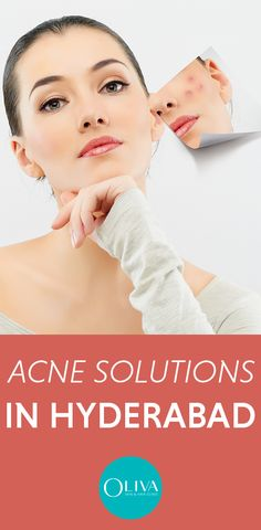 Find the best acne removal guides & tips Laser Acne Scar Removal, Bio Oil Scars, Pimple Scars, Bad Acne, Acne Marks, Scar Treatment, Acne Solutions, Home Remedies For Acne, Remove Acne