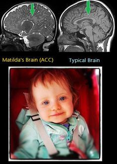 "Have you heard of ""Agenesis of the Corpus Callosum"" (ACC)? Pieta Harris hadn't - until her beautiful daughter Matilda was born - missing part of her. Fetal Alcohol Syndrome, Corpus Callosum, Brain Structure, Brain Anatomy, Metabolic Disorders, Developmental Disabilities, Special Needs Kids, Childrens Hospital, Continuing Education"