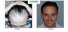 Hair Transplantation Before After photos. Hair Transplant at the best quality for a reasonable price! Before After Photo, Hair Transplant, Budapest, Clinic, How To Remove, Women, Halle, March, Medium