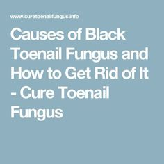Causes of Black Toenail Fungus and How to Get Rid of It  Cure Toenail Fungus