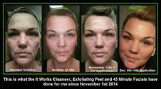 Amazing results.... want to give our skin care line a try....It Works!! www.cindygregg.com