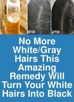 No more White/Gray hairs - This amazing remedy will turn your white hairs back into black Deep Pan, Grey White Hair, Peeling Potatoes, Natural Medicine, Beauty Hacks, Beauty Tips, Restore, Hair Growth, Healthy Hair