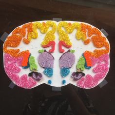 Beaded coronal brain sections are on their way – Where intricate beadwork meets precision of confocal microscopy