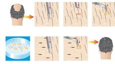 Know Complete Process Of FUE Hair Transplant
