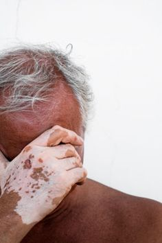 What is Vitiligo? Vitiligo is a skin disorder that causes patches of white skin to appear on different parts of the body. What Is Vitiligo, Vitiligo Skin, Acne Treatment, Medical Textbooks, Skin Grafting, Albinism, Studio, Couple, Black