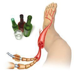 Essential Oils For Nerve Pain