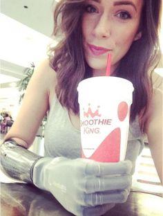 Il coraggio di Rebekah: in passerella a New York con il braccio bionico - Spettacoli - Repubblica.it