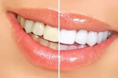 If you have a dental issue that requires surgical procedure, you should take support from qualified and good costa mesa oral surgeon. They could place an end to the discomfort and remove the upseting tooth while doing so. There could be a lot of explanations about why you need to have dental surgery costa mesa and no matter what your individual diagnosis is, you can see a group of oral surgeons who have the skill and encounter to obtain the job done.