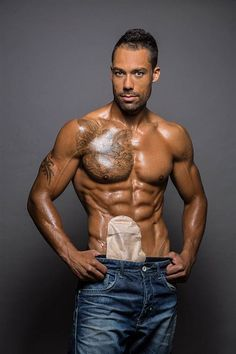 Male Model Poses With Ileostomy Bag Why Should We Be Ashamed