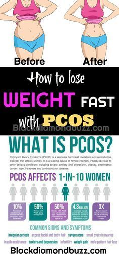 How To Lose Weight With Pcos And Insulin Resistance Naturally Pcos