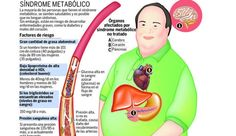 Infografía sobre el Síndrome Metabólico