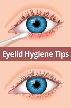 Follow these hygiene steps to help relieve eyelid inflammation (blepharitis)