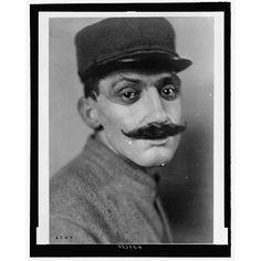 En fransk man med, sannolikt, grovt deformerande skador på käke eller mun.