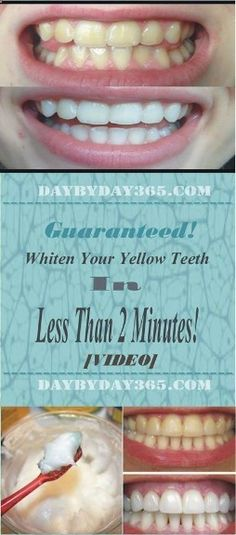 Check this great article how to whiten your theeth - [Video] Guaranteed! Whiten Your Yellow Teeth In Less Than 2 Minutes!