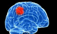 Brain cancer can affect any part of the brain. Brain cancer often starts as a tumor, which is merely an overgrowth of damaged cellular structures. After brain tumor, brain cancer shows many symptoms.