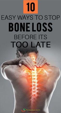 Health Remedies, Home Remedies, Bone Loss, Medical Information, Beauty Skin, Diabetes, Bones, Exercises, It Hurts