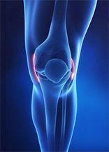 Flexin 500 è un prodotto, che elimina il dolore e l infiammazione delle articolazioni. Supporta anche la riparazione e la ricostruzione della cartilagine e tessuto articolare. Si tratta di un prodotto completamente naturale, che utilizza un complesso formula FluidJoint.    http://track.flexin500.pl/product/Flexin500/?pid=151&uid=48382