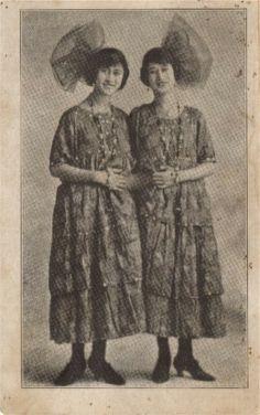 Mary and Anna, world famous Hondurainian conjoined twins, were born in Rio Hondo, Honduras, May 17th, 1907.