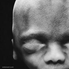 embryo 20weeks photo