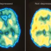 People with hidden depression don't even know they need others' help. If you happen to see someone who may have these symptoms, care about them more.