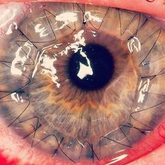 Corneal transplantation, also known as corneal grafting, is a surgical procedure where a damaged or diseased cornea is replaced by donated corneal tissue (the graft) in its entirety (penetrating keratoplasty) or in part (lamellar keratoplasty). Surgical Tech, Eye Doctor, Natural Cures, Surgery, The Cure, Human Body, Human Eye, Medical Art, Student