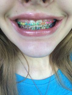 This braces arn't they cool? Dental Braces, Teeth Braces, Rainbow Braces, Braces Retainer, Cute Braces Colors, Black Braces, Getting Braces, Braces Girls, Gadgets