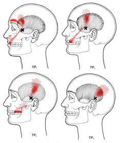 Temporalis | The Trigger Point & Referred Pain Guide