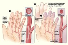 Raynauds disease is a peripheral vascular disease characterized by abnormal vasoconstriction of the extremities.  Smoking cessation is one of the most important lifestyle changes that a client needs to make.