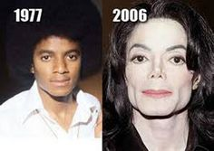 Michael Jackson Plastic Surgery Before And After - http://www.celeb-surgery.com/michael-jackson-plastic-surgery-before-and-after/?Pinterest
