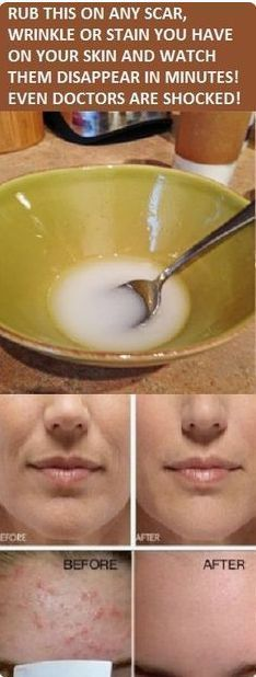 The main ingredient of this incredible solution is honey, a sweet natural nectar produced by bees which will promote flow in your skin and improve your skin besides the various other health advanta…