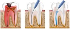 Safer and Healthier Alternatives to Root Canals and Other Common, Yet Harmful, Tooth Restoration Techniques