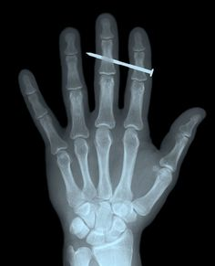Hm, I could be wrong, but I think there's a nail in your finger. Let's x-ray it, just to be sure, though.