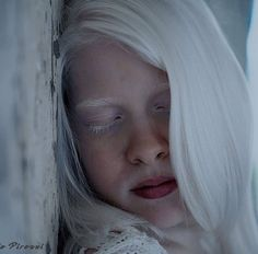Albinism, Beautiful Pictures, Game Of Thrones Characters, Portraits, Pretty Pictures, Head Shots, Portrait Photography, Portrait Paintings, Headshot Photography