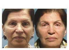 A before and after photo of what #Obagi products can do for you! #YuvaMedicalSpa