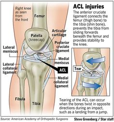 Anterior Cruciate Ligament injuries - a surprisingly common injury in all sizes of dogs.