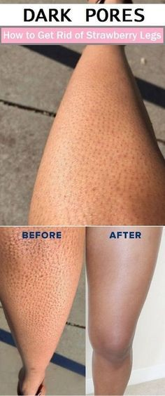 Dark pores on the legs are one of the weird things for women. While they tried so many times, they fed up to deal it with thousands...