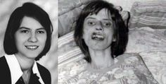Anneliese Michel was said to be possessed by demons and underwent a ten-month-long voluntary exorcism in 1975. The Exorcism of Emily Rose and Requiem are based on Anneliese's story. The documentary movie Exorcism of Anneliese Michel features the original audio tapes from the exorcism. 2 priests & her parents were convicted of negligent manslaughter. When she died she weighed 68 pounds. The case has unfortunately been labelled a misidentification of mental illness, and abuse.
